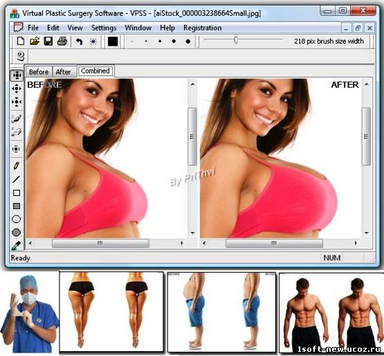 Virtual Plastic Surgery Software 1.0.0.1484 Portable